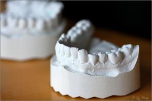 Zahnarzt, Zahnprothetik, Zahnersatz, Parodontologie